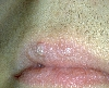 localisation: upper lip, diagnosis: Verrucae Planae Juveniles