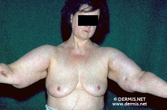 localisation: shoulder region upper arms diagnosis: Launois-Bensaude's Lipomatosis
