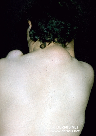 localisation: back of neck shoulder region diagnosis: Lipoma