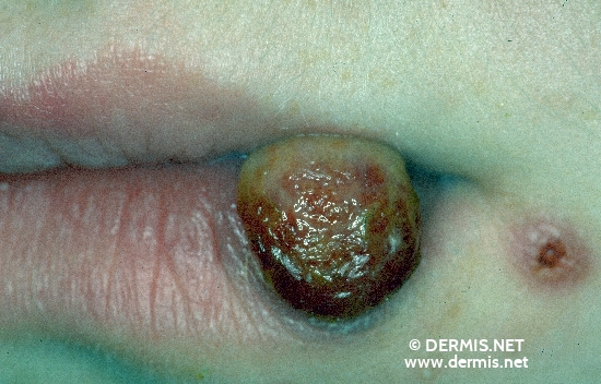 localisation: lower lip diagnosis: Granuloma Pyogenicum