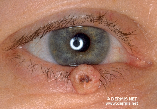 localisation: lower eyelid diagnosis: Keratoacanthoma