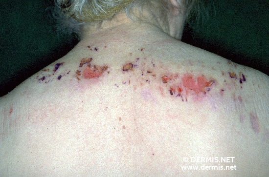 localisation: upper back shoulder region diagnosis: Neurotic Excoriations