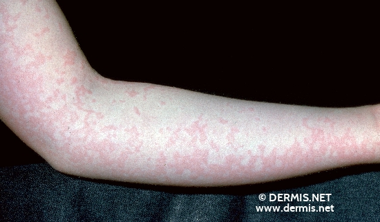 localisation: arms diagnosis: Erythema Infectiosum
