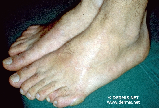 localisation: toe diagnosis: Malformations of Extremities