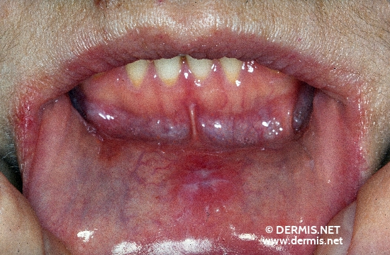 localisation: mucous membranes (oral, nasal) internal aspect of the lower lip diagnosis: Secondary Lues