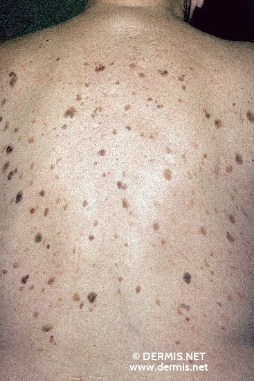 Seborrheic Keratosis: Risks, Diagnosis, & Treatment
