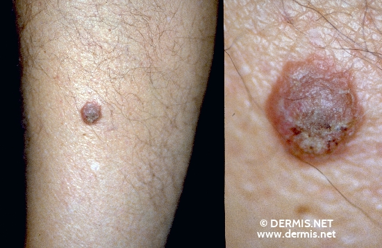 localisation: lower leg diagnosis: Seborrheic Keratosis