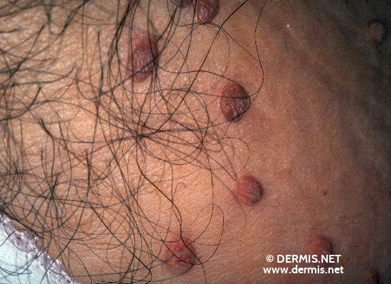 diagnosis: Fibroma Pendulans
