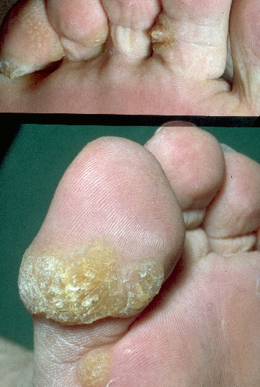 localisation: toe diagnosis: Verruca Vulgaris