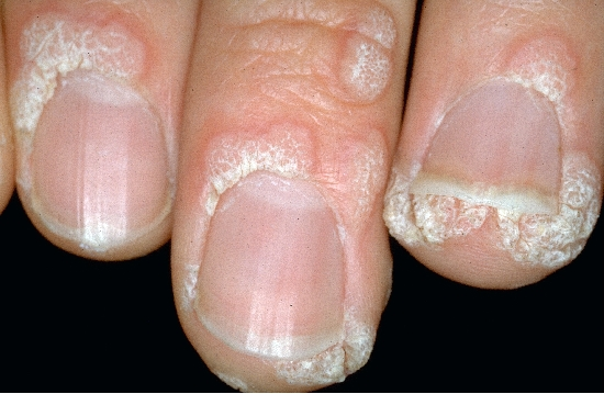 localisation: finger proximal nail fold of the finger diagnosis: Verruca Vulgaris