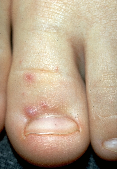 localisation: toe proximal nail fold (toes) diagnosis: Hand-Foot-Mouth Disease