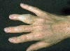 Diagnose: Psoriasis arthropathica
