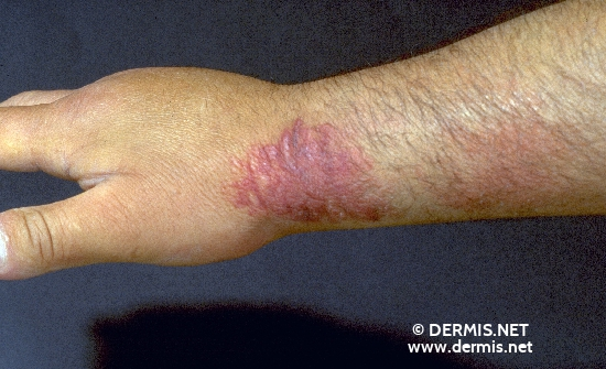 localisation: lower arms diagnosis: Eosinophilic Cellulitis