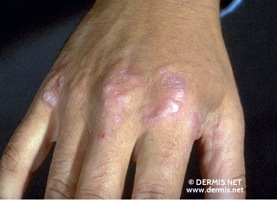 localisation: digital metacarpo-phalangeal joint diagnosis: Granuloma Annulare