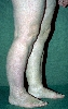 localisation: lower leg, diagnosis: Acrodermatitis Chronica Atrophicans Herxheimer