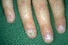localisation: fingernail, diagnosis: Twenty-Nail-Dystrophy