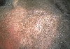 localisation: scalp, diagnosis: Seborrheic Dermatitis
