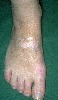 localisation: back of the feet, diagnosis: Vitiligo
