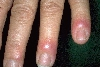localisation: finger, diagnosis: Sweet's Syndrome