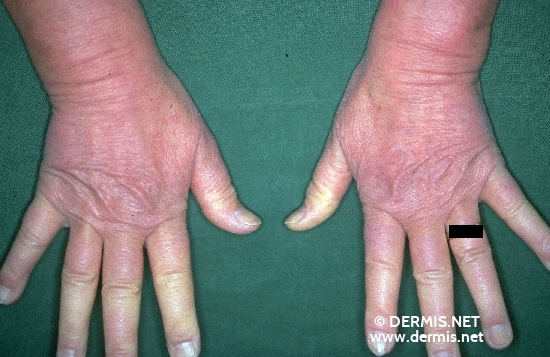 localisation: finger diagnosis: Raynaud's Disease