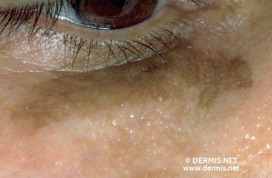 localisation: lower eyelid diagnosis: Lentigo Maligna