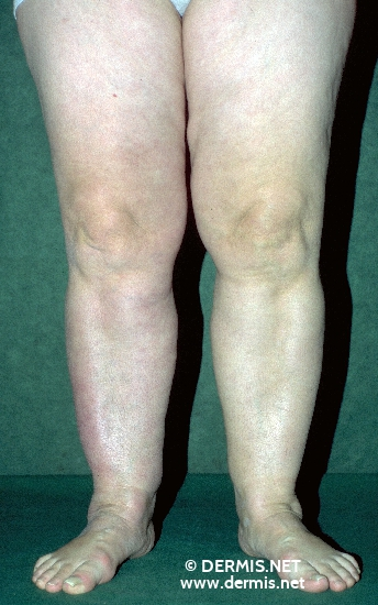 localisation: lower leg ankle joint diagnosis: Acrodermatitis Chronica Atrophicans Herxheimer
