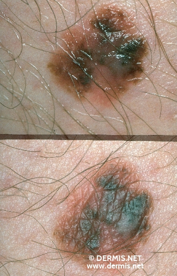 localisation: upper leg diagnosis: Superficial Spreading Melanoma (SSM)