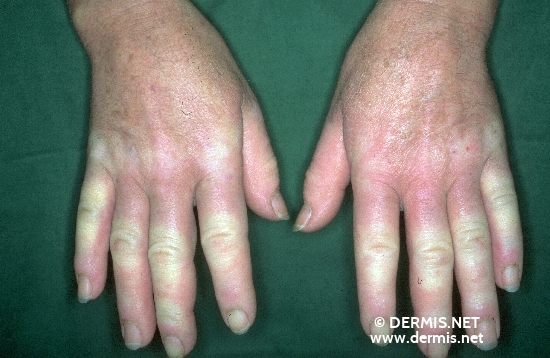 localisation: finger digital proximal interphalangeal joint proximal nail fold of the finger diagnosis: Raynaud's Syndrome Progressive Systemic Scleroderma