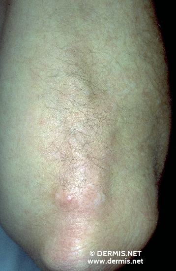 localisation: elbow diagnosis: Calcinosis Cutis Progressive Systemic Scleroderma