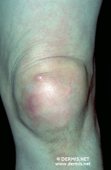 localisation: knee diagnosis: Calcinosis Cutis Progressive Systemic Scleroderma