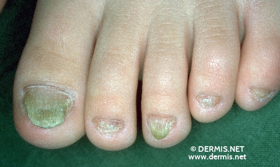 localisation: toenail diagnosis: Twenty-Nail-Dystrophy