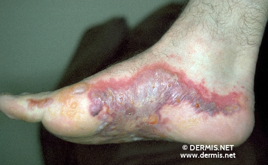 localisation: feet diagnosis: Acute Irritant Contact Dermatitis