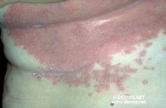 localisation: mamma lower chest diagnosis: Psoriasis Inversa