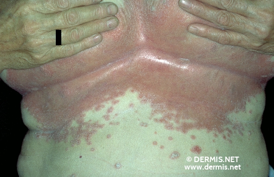 localisation: lower chest diagnosis: Psoriasis Inversa
