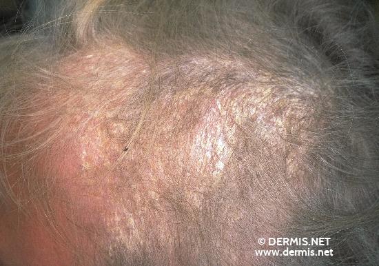 Likopid au traitement du psoriasis