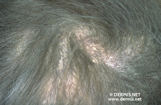 localisation: scalp diagnosis: Seborrheic Dermatitis