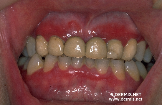 localisation: mucous membranes (oral, nasal) gingiva diagnosis: Lichen Planus of the Mucosa, Erosive