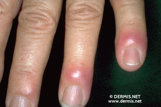 localisation: finger diagnosis: Sweet's Syndrome