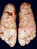 localisation: sole, diagnosis: Psoriatic Erythroderma