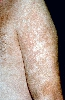 localisation: upper arms, diagnosis: Psoriasis Vulgaris, Chronic Stationary Type, Leukoderma