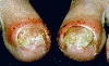 localisation: toenail, proximal nail fold (toes), diagnosis: Psoriasis Vulgaris, Nail Changes