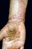 localisation: lower arms, diagnosis: Psoriasis Vulgaris, Chronic Stationary Type