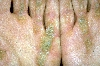 localisation: palms, diagnosis: Keratosis Palmoplantaris