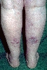 localisation: lower leg, diagnosis: Sarcoidosis, Large Nodular Type