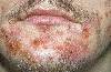 localisation: angle of the mouth, chin, diagnosis: Small-Vesicle Impetigo Contagiosa