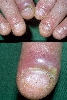 localisation: proximal nail fold of the finger, diagnosis: Paronychia