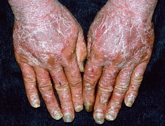 mycose pied traitement