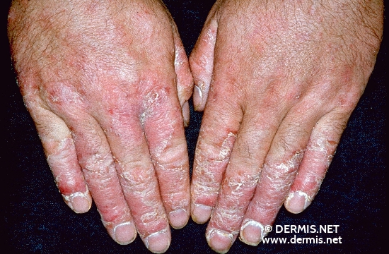 localisation: hands finger diagnosis: Psoriasis Vulgaris, Chronic Stationary Type