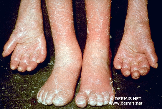 localisation: hands feet diagnosis: Psoriasis Arthropathica Psoriatic Erythroderma