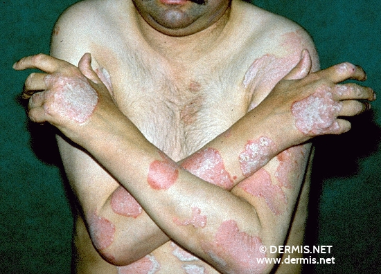 localisation: arms diagnosis: Psoriasis Vulgaris, Chronic Stationary Type